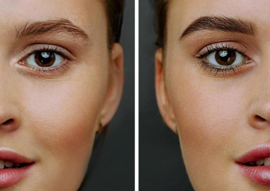 أهمية زراعة شعر الحواجب في زيادة جمالية الوجه