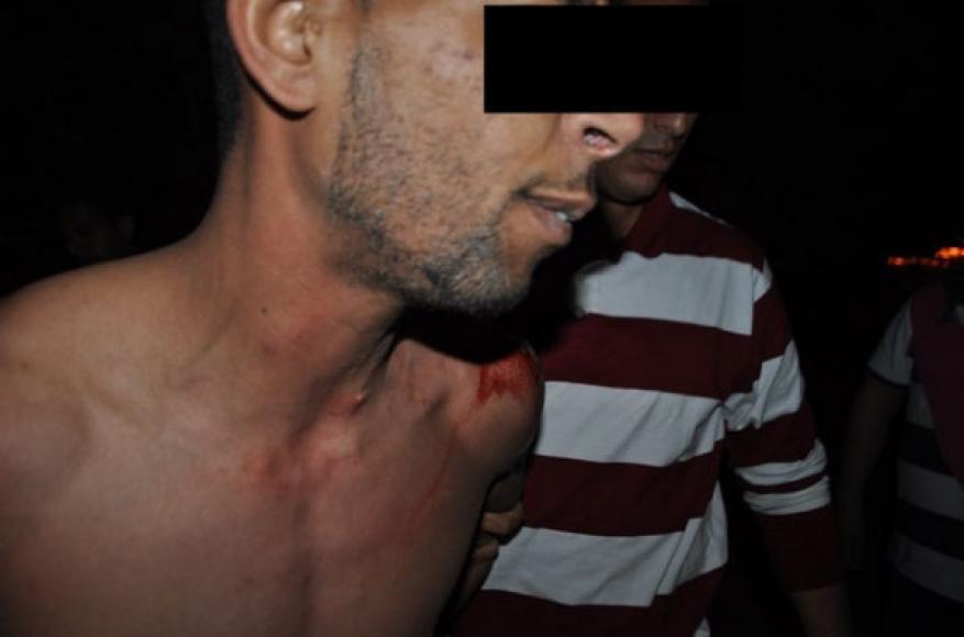 اغتصاب شاب يورط خمسة أشخاص في المغرب .. وهذه هي التفاصيل
