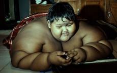 يزن 195 كيلو.. شاهد كيف أصبح شكل الطفل الأكثر بدانة في العالم
