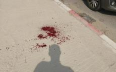 إصابة إسرائيليين أحدهما في حالة خطيرة خلال عملية طعن شمال الضفة
