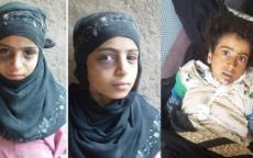 صور قبل وفاتها بلحظات.. غضب في اليمن ودعوات للانتقام قانونياً للطفلة الراحلة أصيلة النهمي