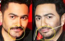طبيب تجميل يحسم الجدل حول العمليات التجميلية في وجه تامر حسني