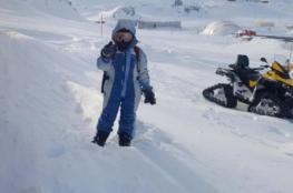 لماذا يضطر سكان قرية قطبية إلى استئصال الزائدة الدودية؟
