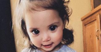 جمالها سبب ألمها.. مرض نادر يجعل عيون طفلة كأميرات ديزني