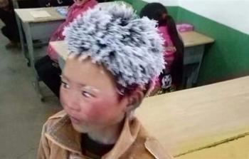 صورة مؤلمة جداً لطفل صيني جمعت تبرعات ب336 ألف دولار