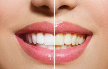 أسنان.jpg