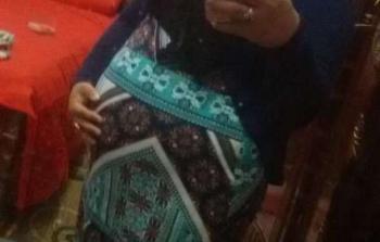 مصر.. صورة تثبت حمل سيدة اختفى جنيناها التوأم من الرحم بعد 6 أشهر بشكل مفاجئ